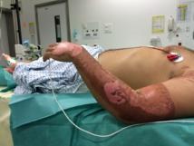 Catalepsie sur un patient au service des grands brûlés